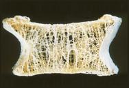 いつのまにか骨折の骨密度の低い骨